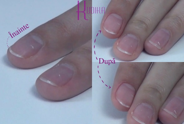 metoda impingerii cuticulelor: before and after