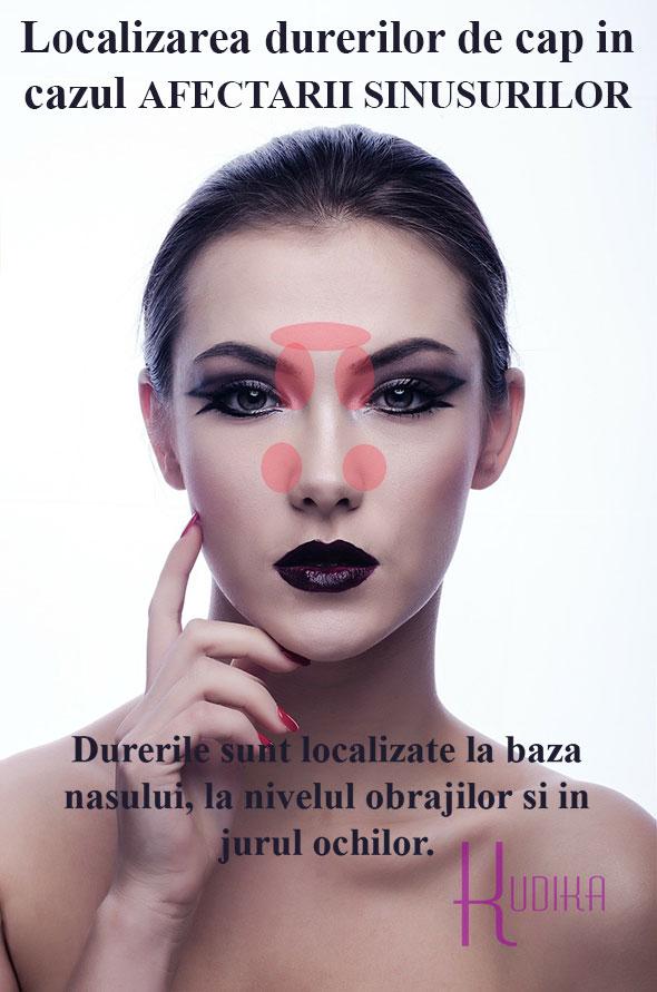 localizarea durerilor de cap in sinuzite