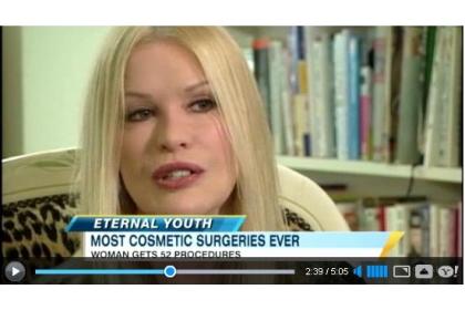 femeie cu 52 operatii estetice - Cindy Jackson