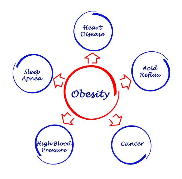obezitate si lipsa miscarii