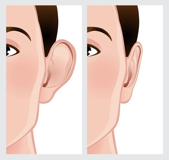 despre operatie de otoplastie