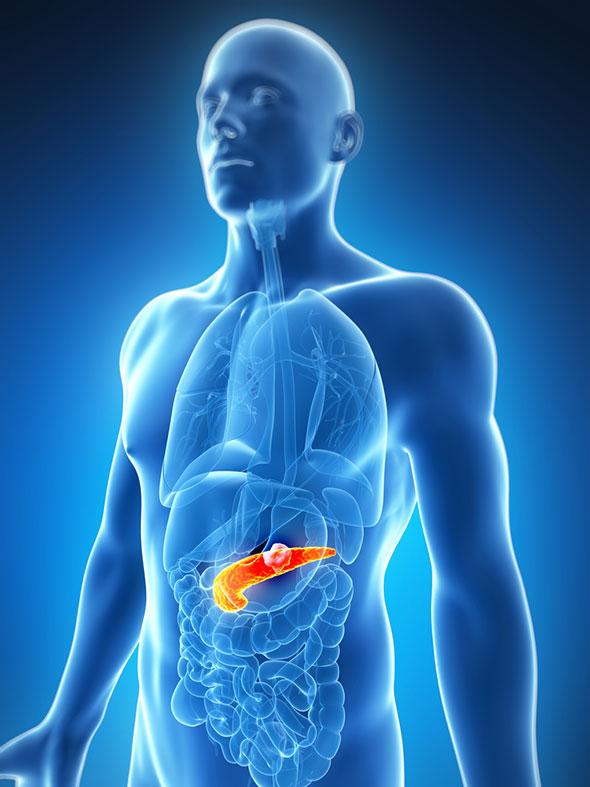 pancreatita acuta simptome si tratament