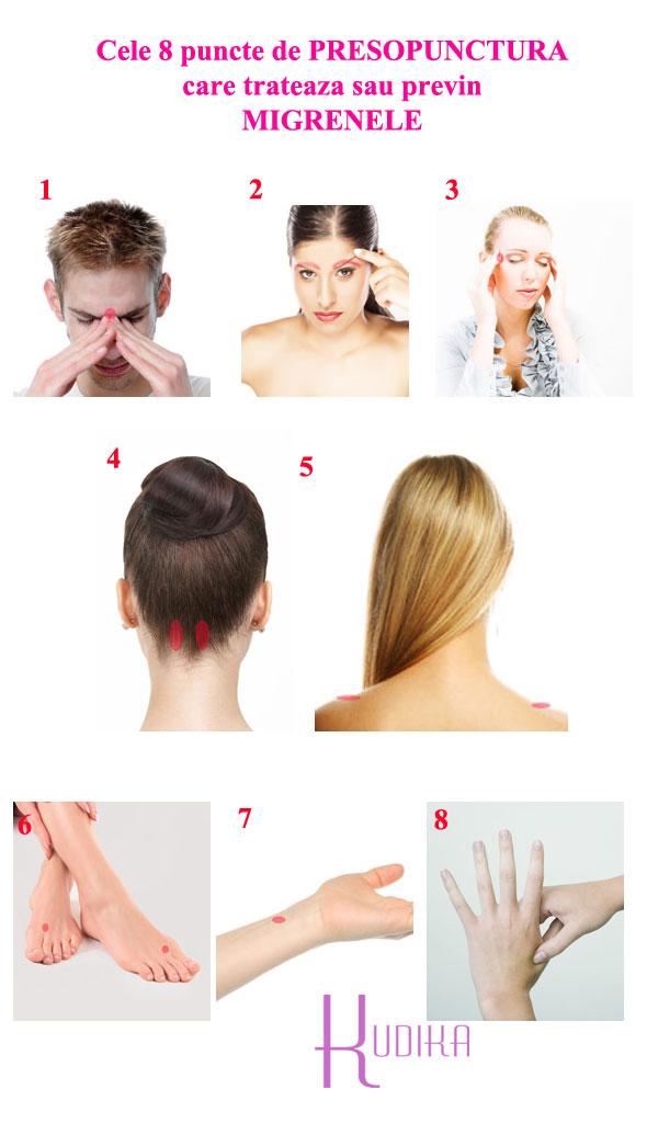 puncte de presopunctura pentru tratarea migrenelor si a durerilor de cap