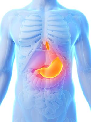 peratia de micsorare a stomacului
