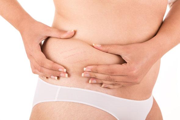 vergeturi pe abdomen tratament