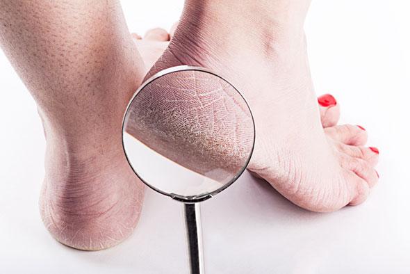 semne simptome manifestari lipsa vitamina a