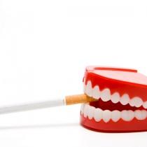 Cancerul oral: cauze, simptome si tratamente