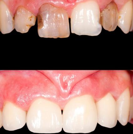 Folosirea laserului versus utilizarea metodei clasice pentru tratarea bolilor parodontale
