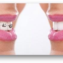 Ce trebuie sa stim inainte de montarea aparatului dentar