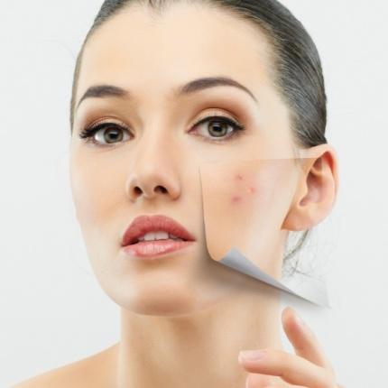 Cum sa iti ingrijesti tenul daca ai acnee?