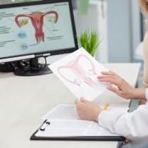 Fibromul uterin - problema care afecteaza tinerele femei