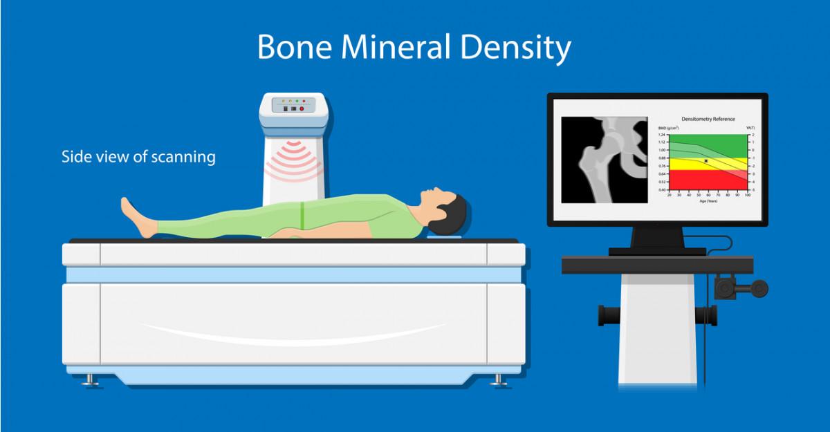 Tot ce trebuie să știi despre Osteodensitometrie (DXA): când este recomandată și pentru ce?