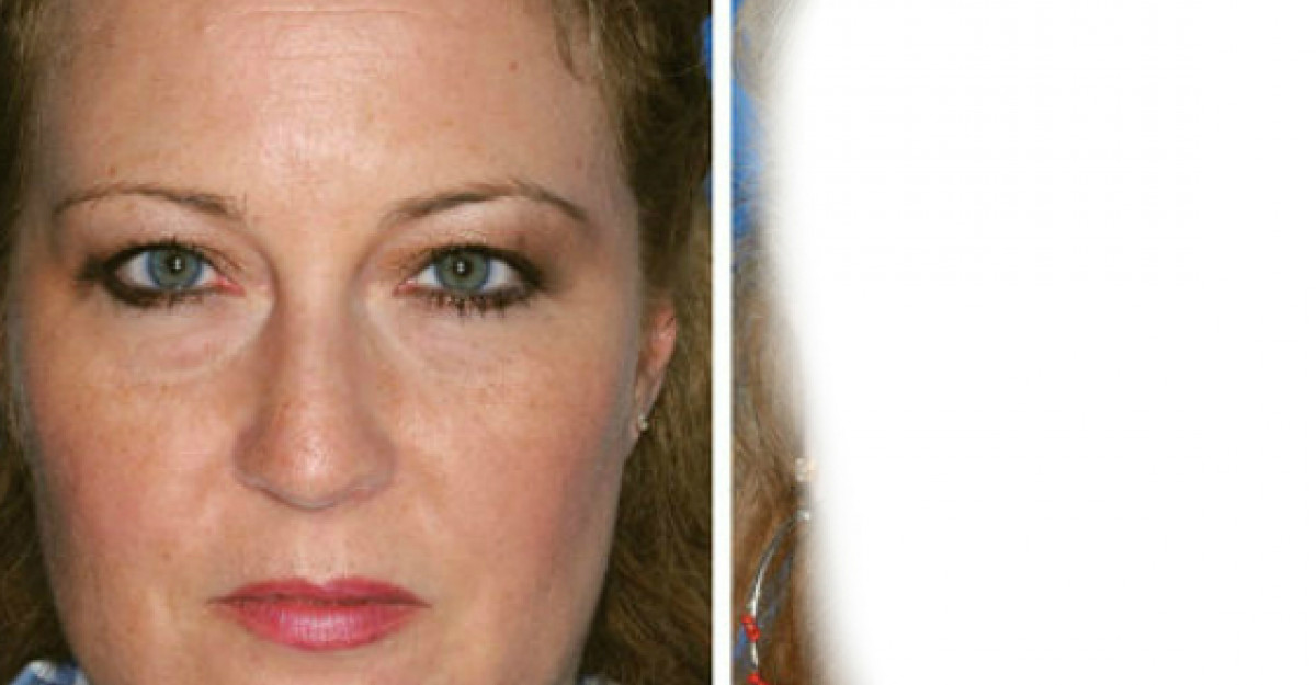 Foto: Efectele fumatului asupra pielii tale! Imaginile spun totul!
