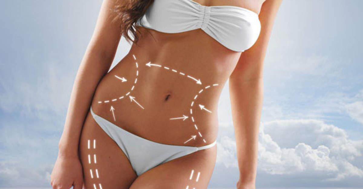 5 solutii ale chirurgiei metabolice care te ajuta sa slabesti
