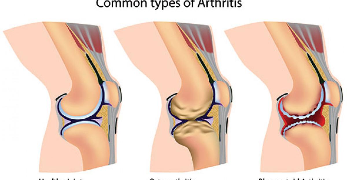 articulația șoldului doare când urc scările care este eficient împotriva durerilor articulare
