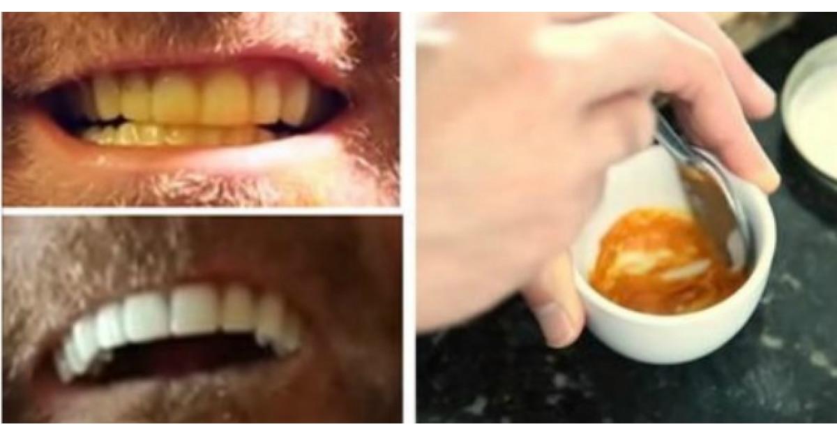 Albeste-ti dintii cu acest super ingredient. Costa doar 5 lei