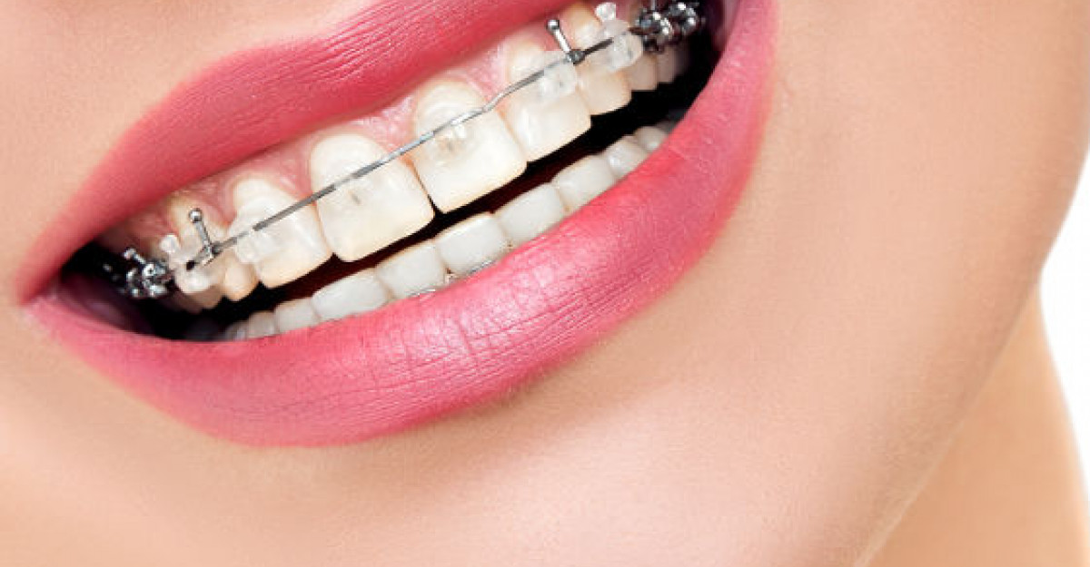 Aparatul dentar: cand si de ce este necesar