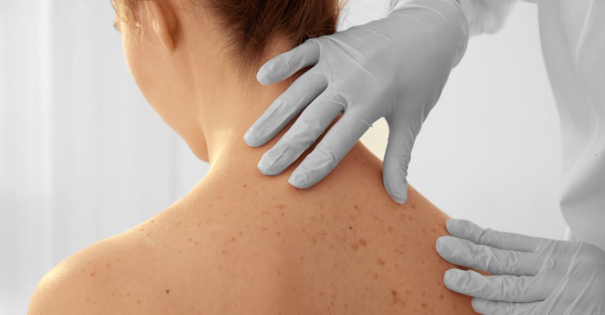 Cancerul de piele si riscurile la care te supui: simptome, cauze, diagnostic si tratament