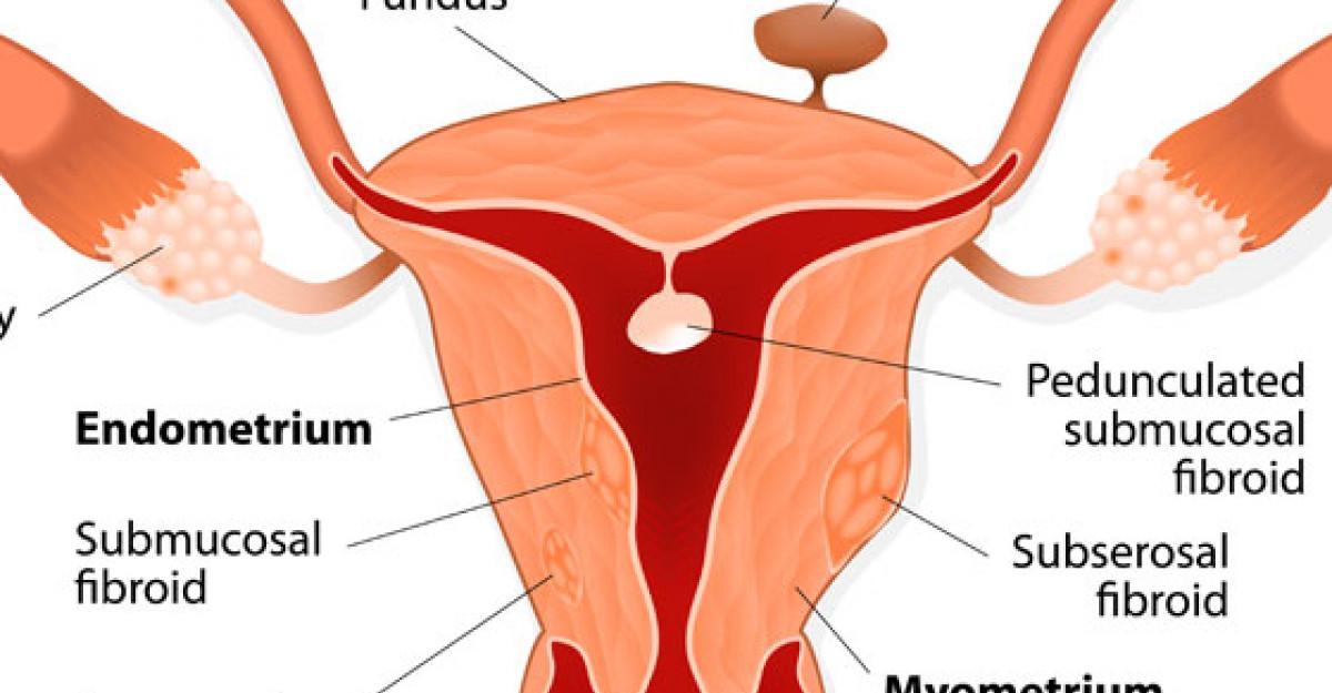 Peste 50% dintre pacientele din Romania sunt diagnosticate cu fibrom uterin