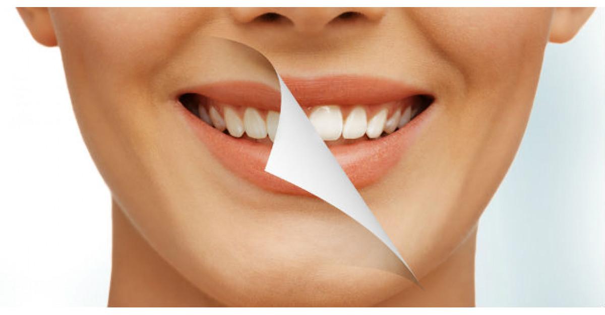 Cum iti albesti dintii foarte usor cu un ingredient ieftin