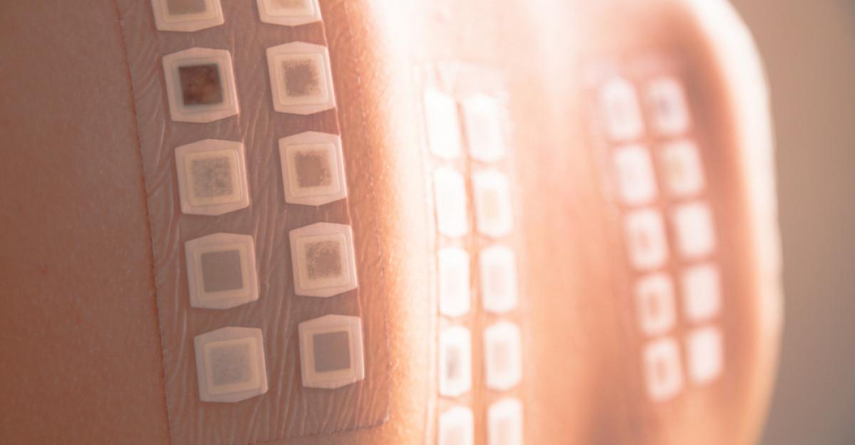 Dermatita de contact și Testarea patch