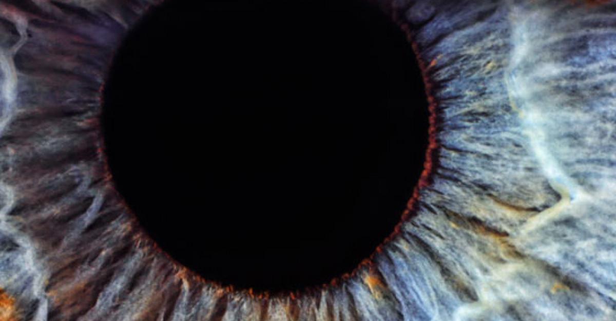 Ochii sunt oglinda SANATATII! 10 afectiuni care pot fi citite in ochi