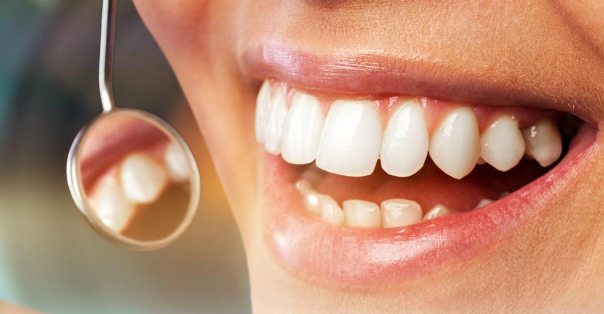 Tot ce trebuie sa stii despre parodontoza, infectia care te poate lasa fara dinti