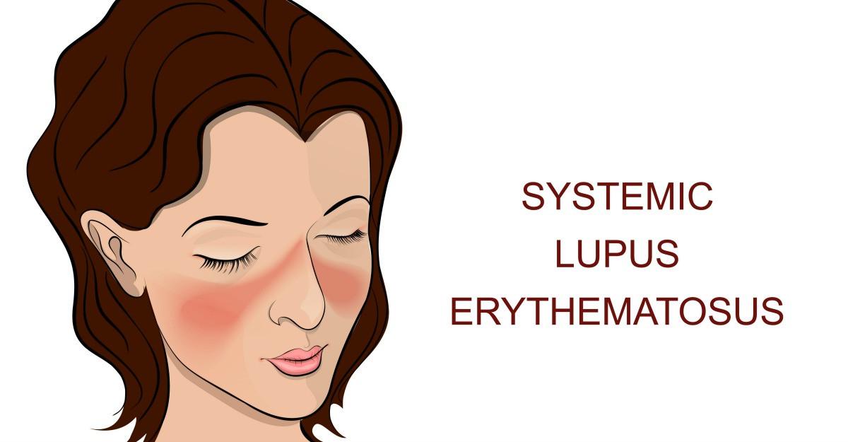 Lupus, boala autoimuna cronica ce poate afecta orice parte a corpului