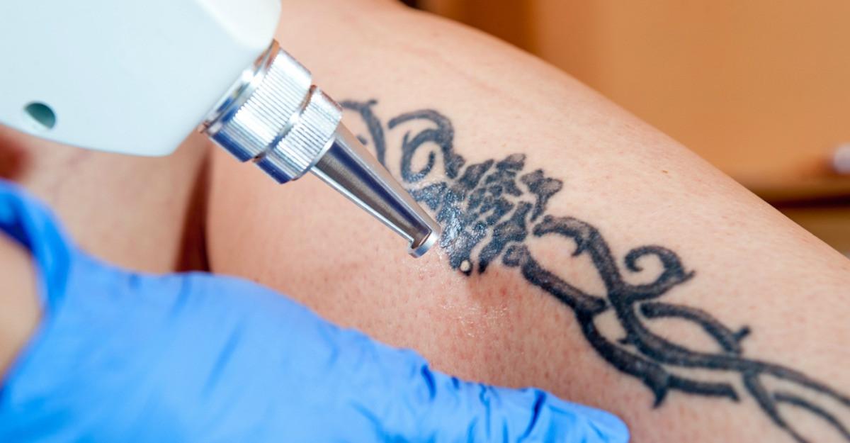 Vrei sa iti stergi tatuajul? Iata ce trebuie sa stii
