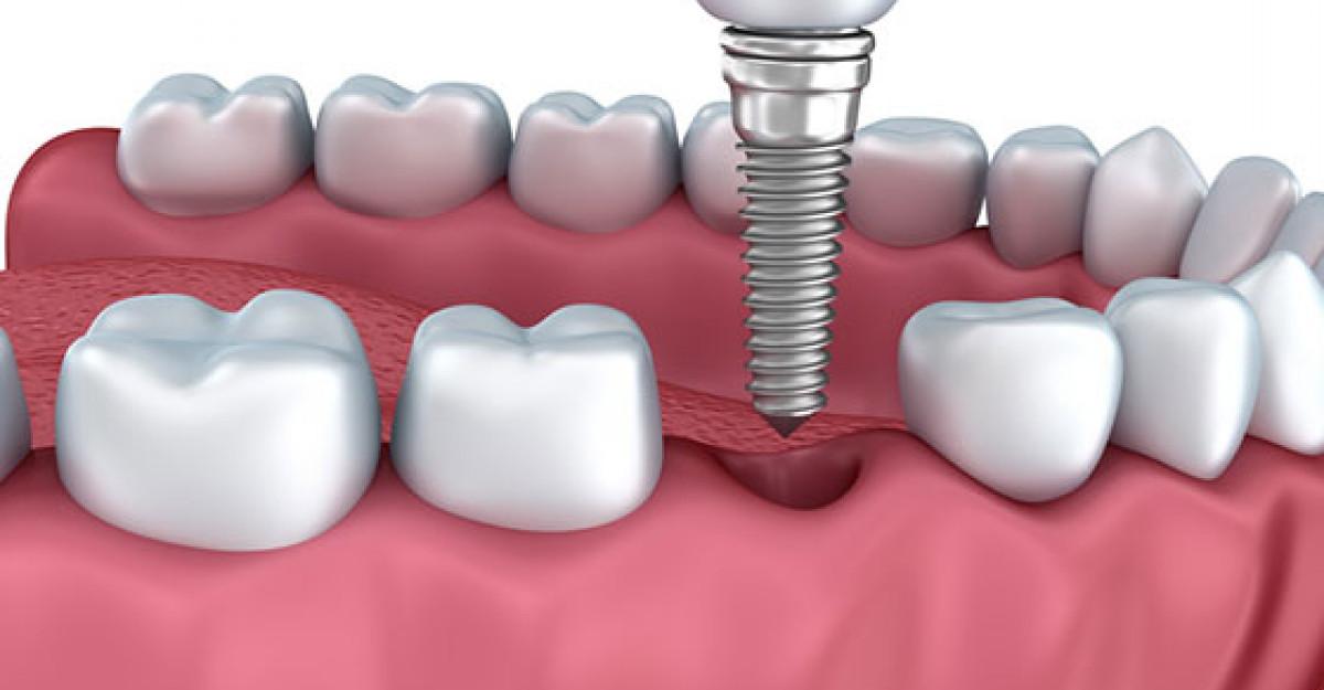 De ce este implantul dentar o solutie mai buna decat puntea dentara?