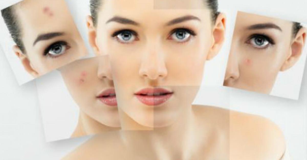 Acnee - Cum decurge o vizita la medicul dermatolog?