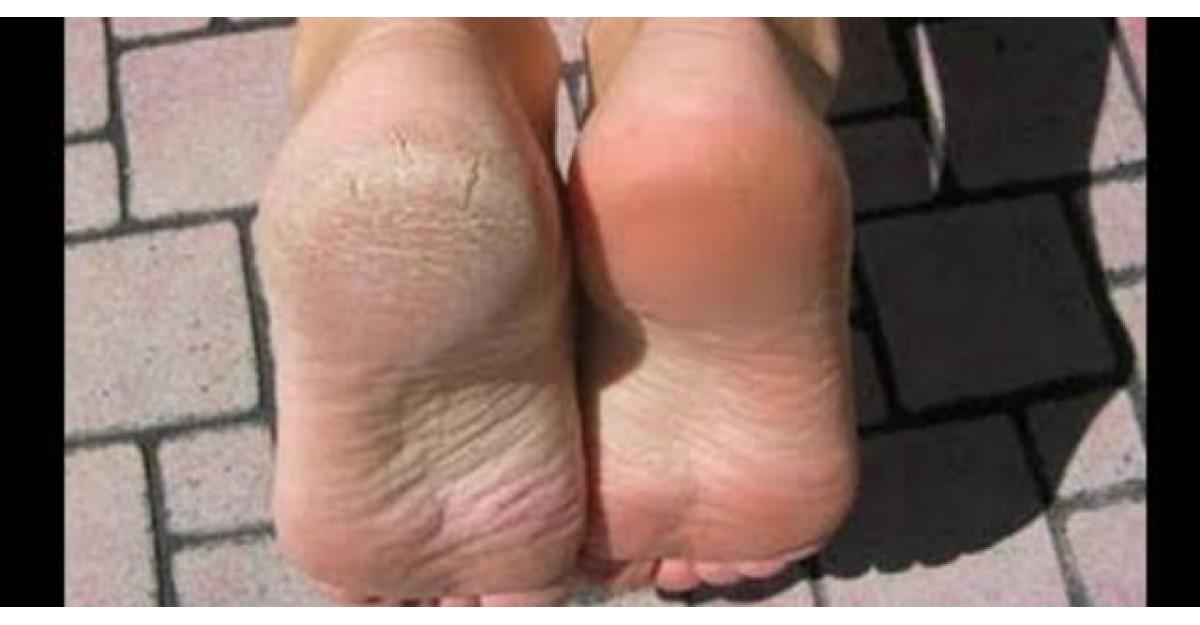 Pregateste-ti picioarele pentru sezonul sandalelor cu DOUA ingrediente naturale