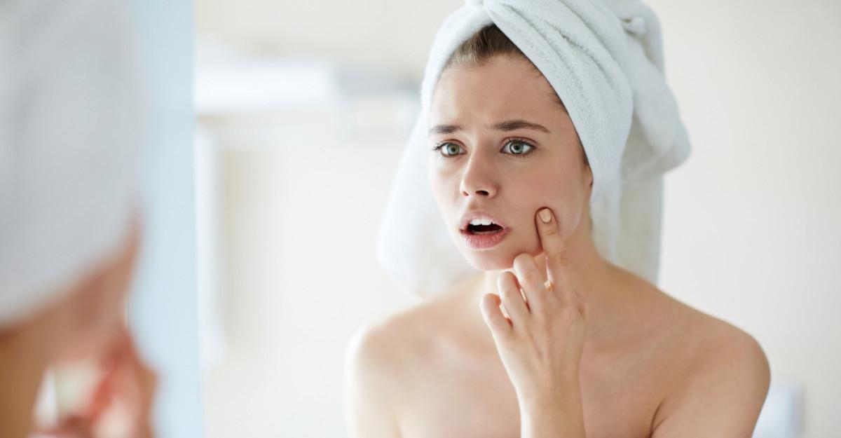 Tot ce trebuie sa stii despre acnee