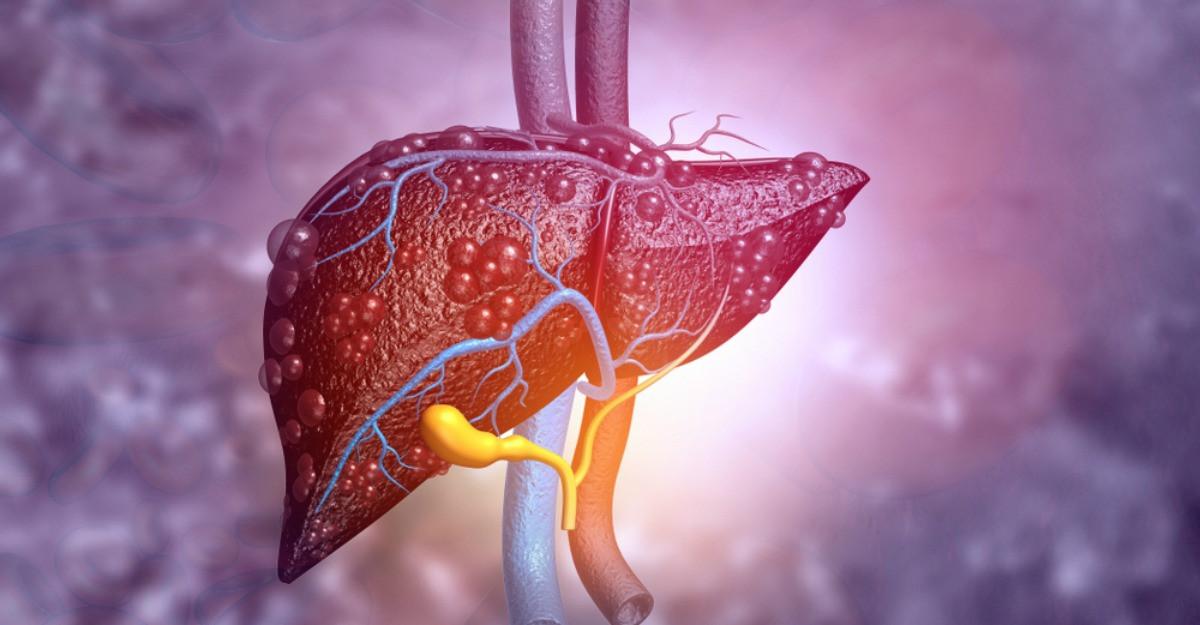 Tot ce trebuie sa stii despre ficatul gras: cauze, simptome si tratament