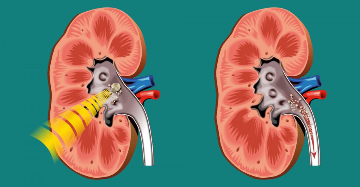 Tratament modern pentru pietrele la rinichi: Litotriția extracorporeală cu unde de șoc ESWL
