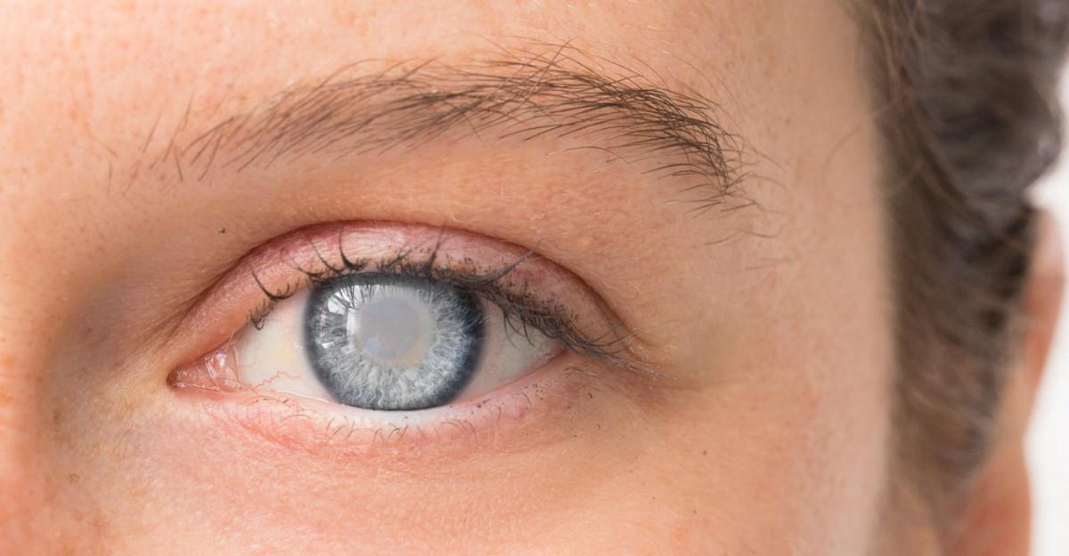 Totul despre cataracta, afectiunea periculoasa care poate duce la pierderea vederii