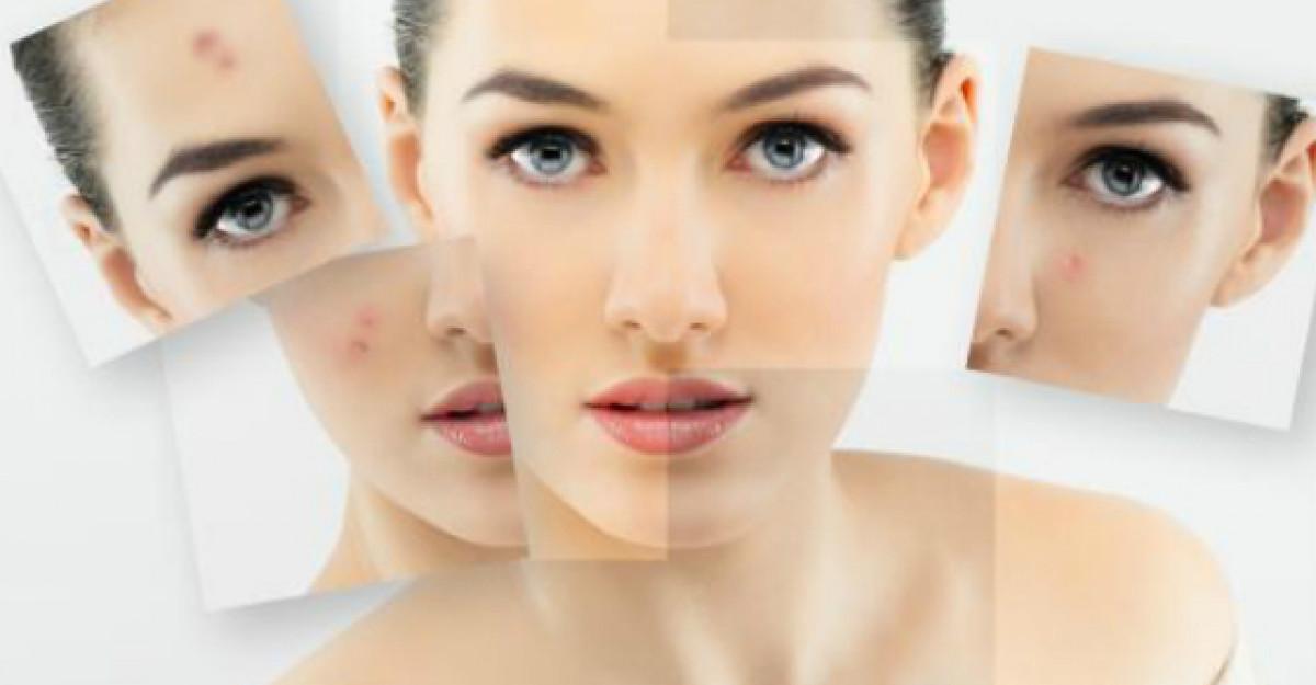 3 Pasi pentru un ten fara acnee