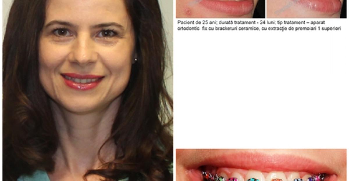 6 mituri despre aparatele dentare