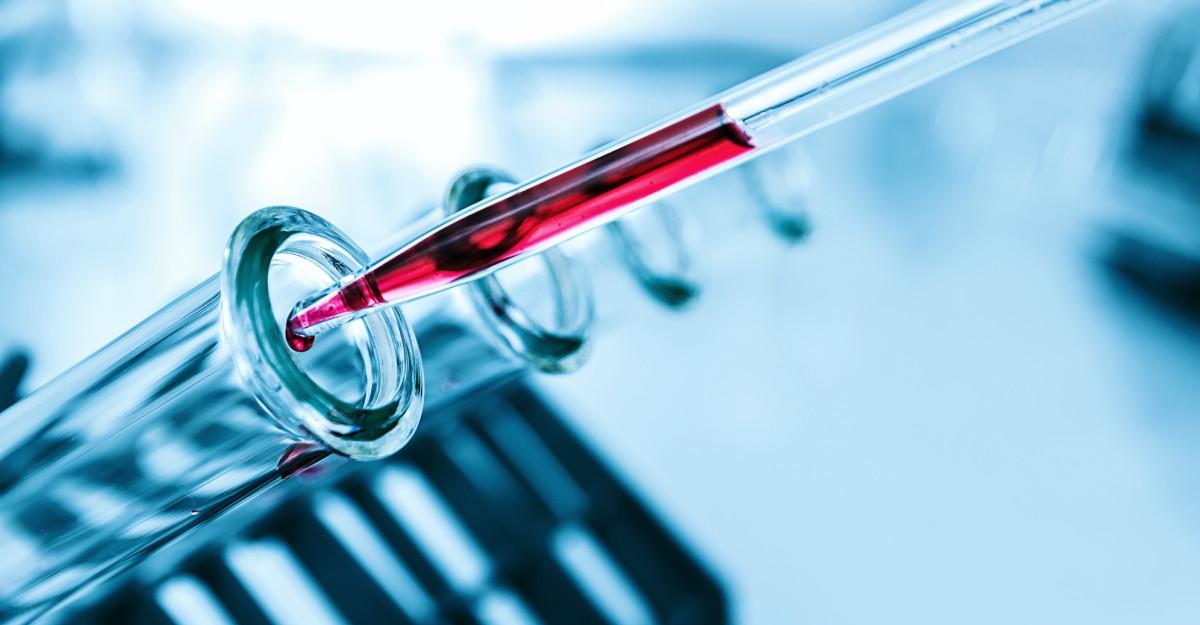 Ce sunt trigliceridele si de ce sunt periculoase? Cauze, diagnostic si tratament