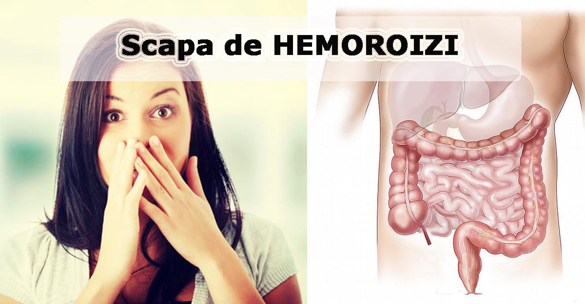Nimeni nu ti le spune: 5 greseli care provoaca HEMOROIZII