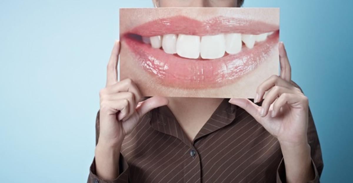 Albirea dintilor are acum un nou nume - LASER EPIC BIOLASE