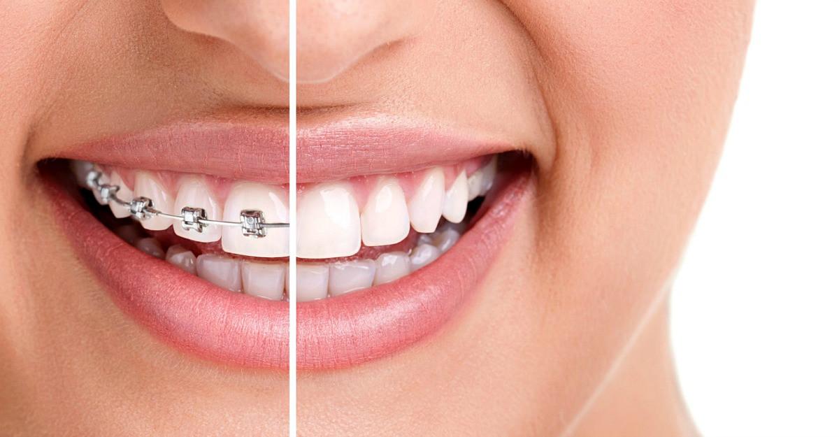 Aparatul dentar – influenta asupra simetriei faciale