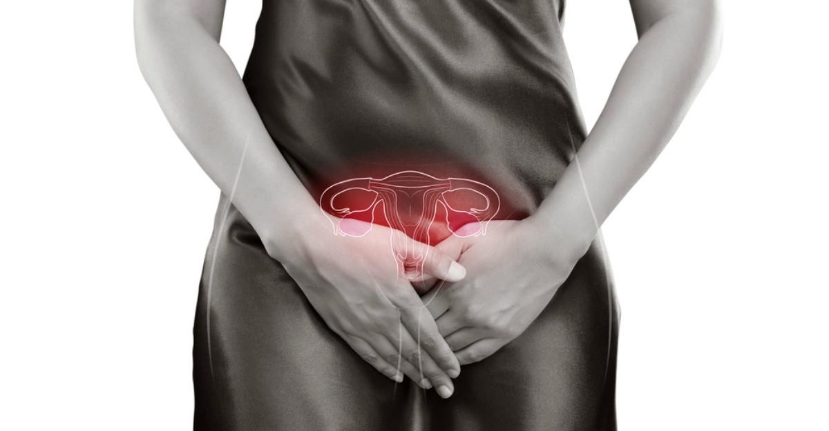 Sindromul ovarelor micropolichistice