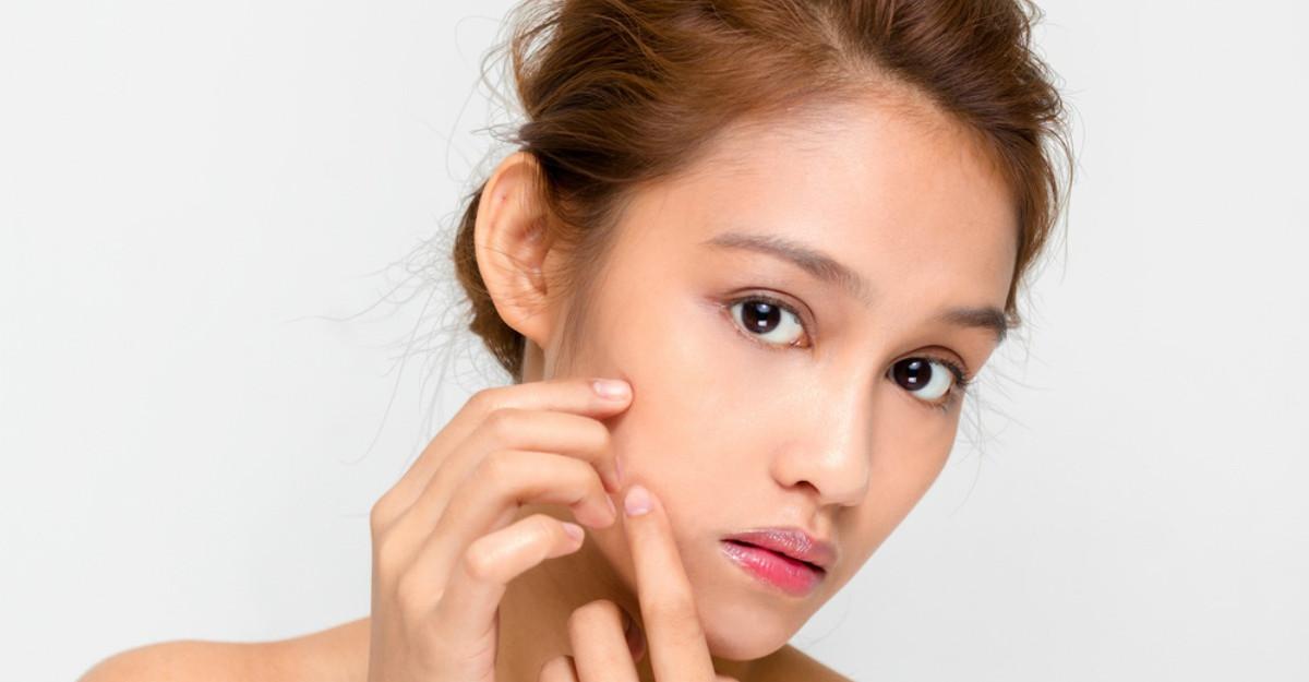 Cele mai sanatoase metode de a scapa de acnee