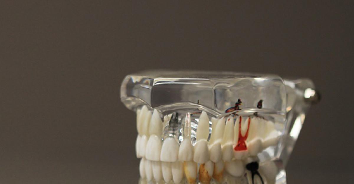 Protezele dentare second hand – o gluma proasta?