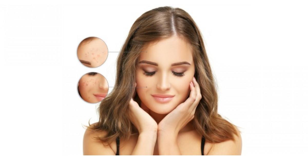 20 de sfaturi pentru persoanele cu acnee