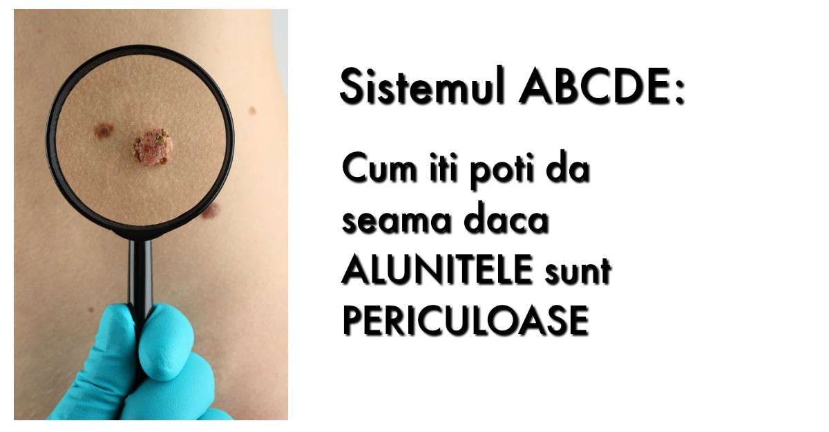 Sistemul ABCDE: Cum iti poti da seama daca ALUNITELE sunt PERICULOASE