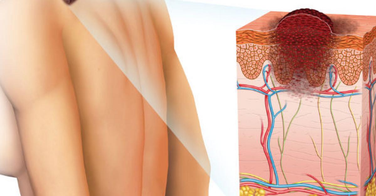 Zilele Melanomului - ce ar trebui sa stii despre cancerul de piele