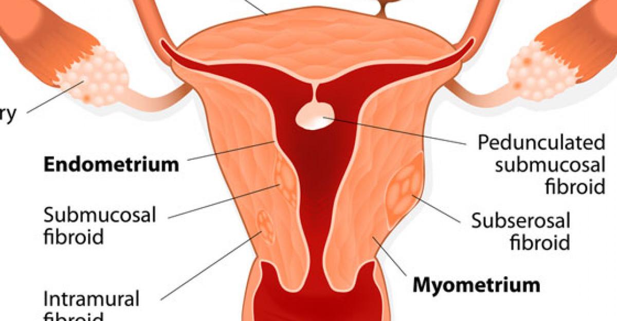 Fibromul uterin - tratat prin Laparoscopie