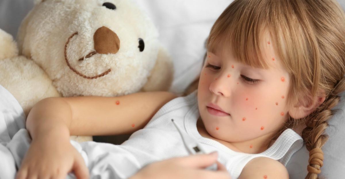 Tot ce trebuie sa stii despre varicela, infectia virala care provoaca febra si eruptie cutanata pe tot corpul